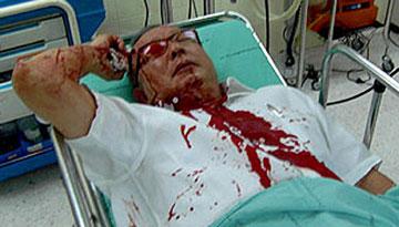 泰国民盟领导人颂提遭枪击受伤