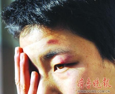 部惊现淤青_肖桐左眼部被棒球棒打成淤青.张中 摄
