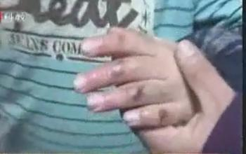 九龄男童受虐待 继母称其偷盗撒谎