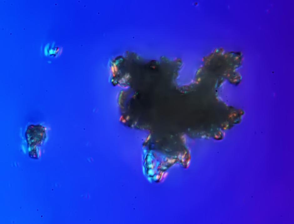 这组图片是通过显微镜,将霾颗粒放大1000倍后,发现他们形状各异,有复合体,有生物颗粒,有矿物质的,看上去触目惊心。