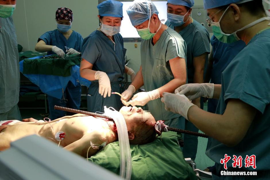 图为医院正在为患者进行紧急手术。中新社发 张远 摄