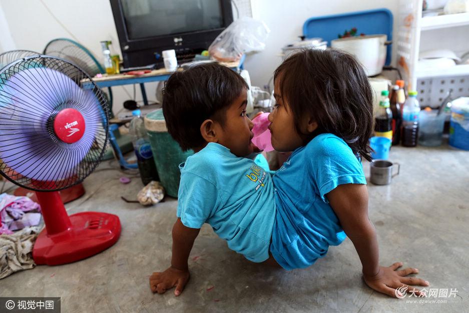 泰国连体双胞胎姐妹情深 拒接受分离手术