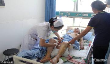 东营老母亲遭儿子儿媳虐待 乳房被烫平
